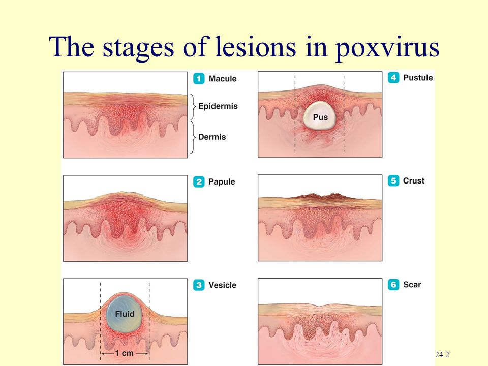 The stages of lesions in poxvirus infections Figure 24.2
