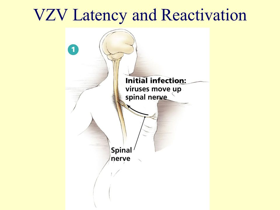 VZV Latency and Reactivation