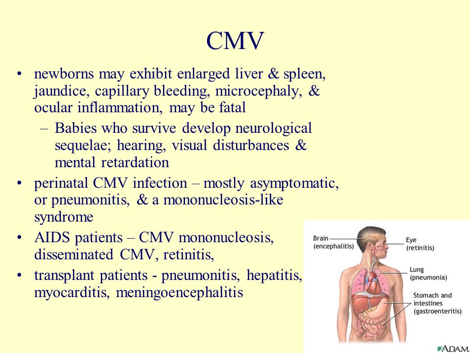 29 CMV newborns may exhibit enlarged liver & spleen, jaundice, capillary bleeding, microcephaly, & ocular inflammation, may be fatal –Babies who survive develop neurological sequelae; hearing, visual disturbances & mental retardation perinatal CMV infection – mostly asymptomatic, or pneumonitis, & a mononucleosis-like syndrome AIDS patients – CMV mononucleosis, disseminated CMV, retinitis, transplant patients - pneumonitis, hepatitis, myocarditis, meningoencephalitis
