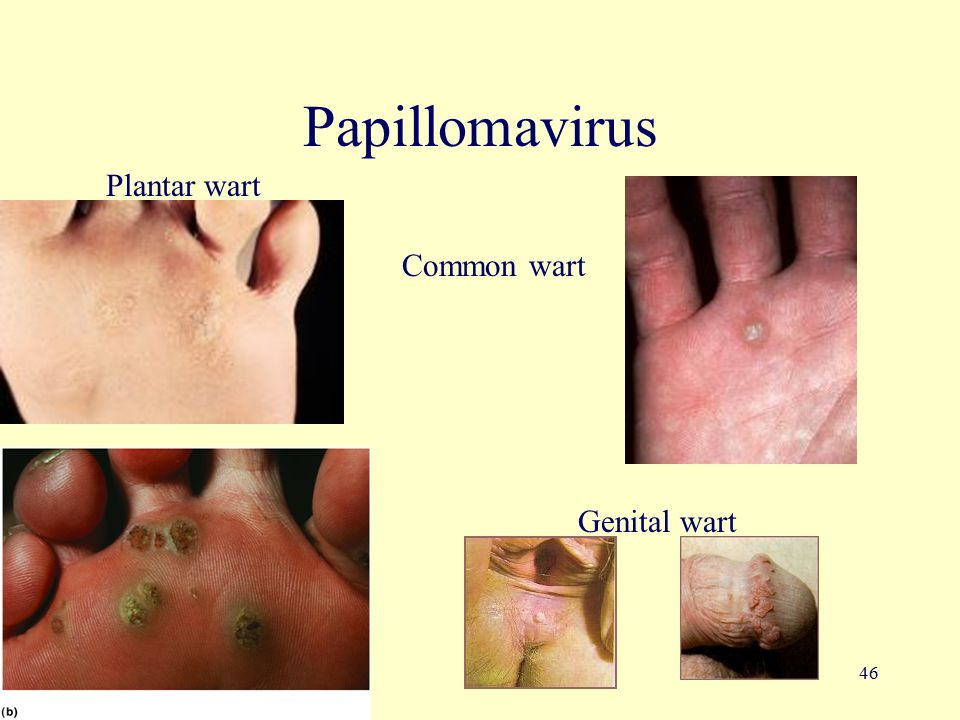 46 Papillomavirus Common wart Plantar wart Genital wart