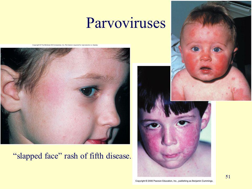 "51 Parvoviruses ""slapped face"" rash of fifth disease."