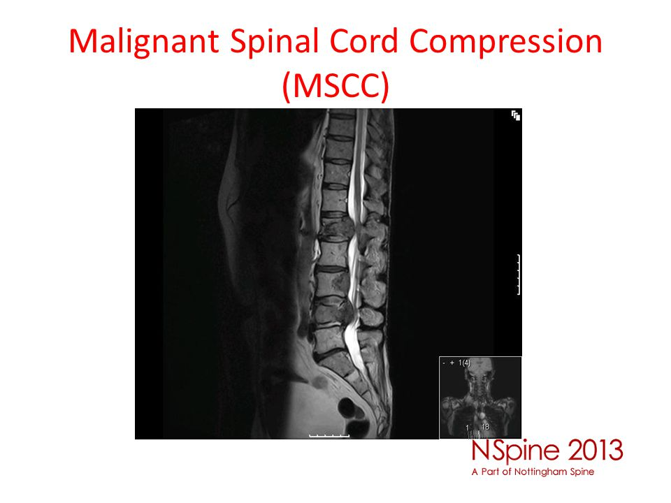 Malignant Spinal Cord Compression (MSCC)