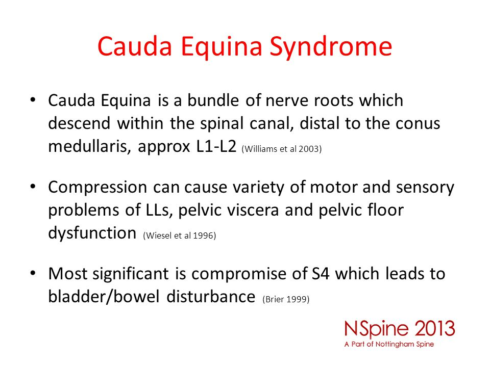 Cauda Equina Syndrome Cauda Equina is a bundle of nerve roots which descend within the spinal canal, distal to the conus medullaris, approx L1-L2 (Wil