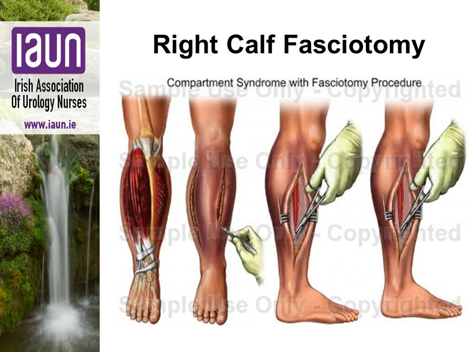 Right Calf Fasciotomy