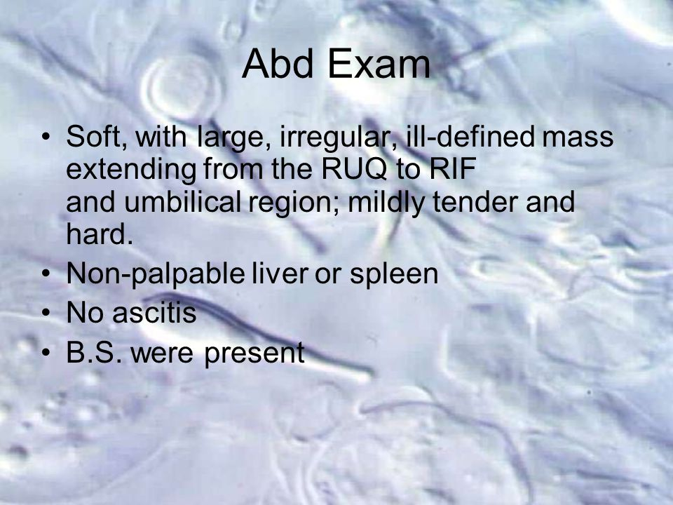Abd Exam Soft, with large, irregular, ill-defined mass extending from the RUQ to RIF and umbilical region; mildly tender and hard.