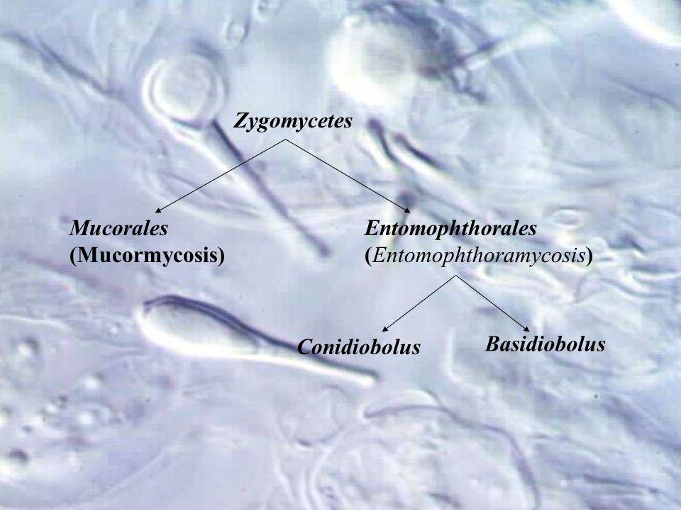 Zygomycetes Mucorales (Mucormycosis) Entomophthorales (Entomophthoramycosis) Conidiobolus Basidiobolus