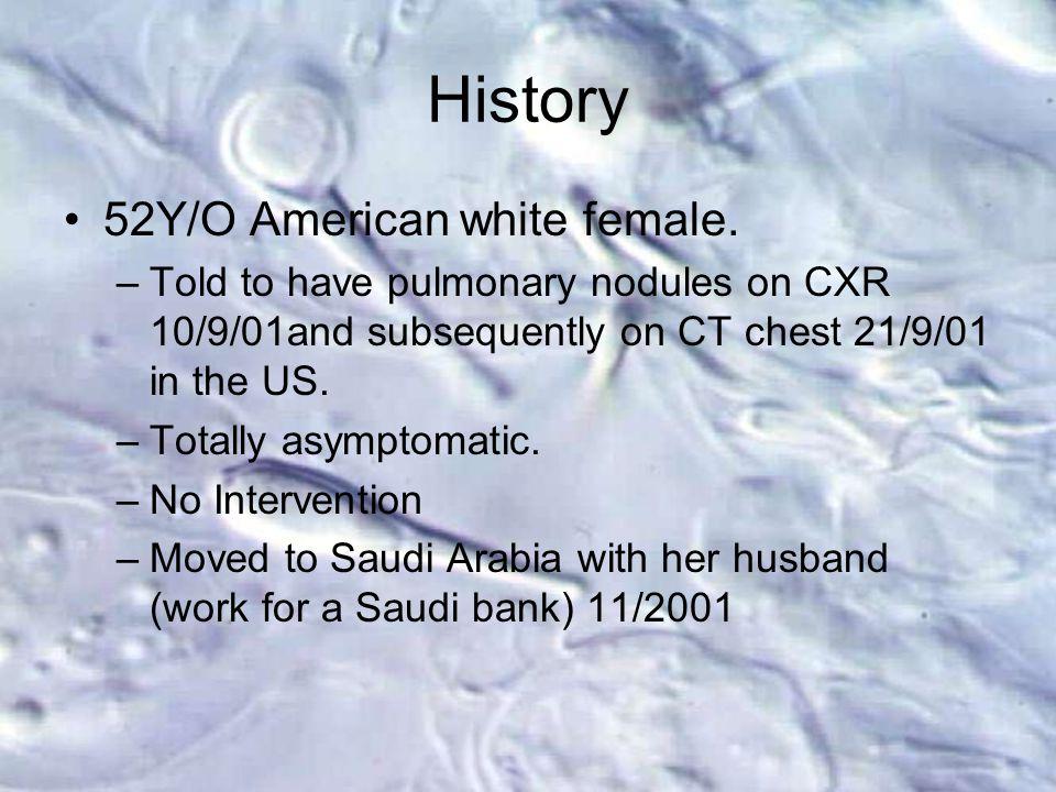 History 52Y/O American white female.