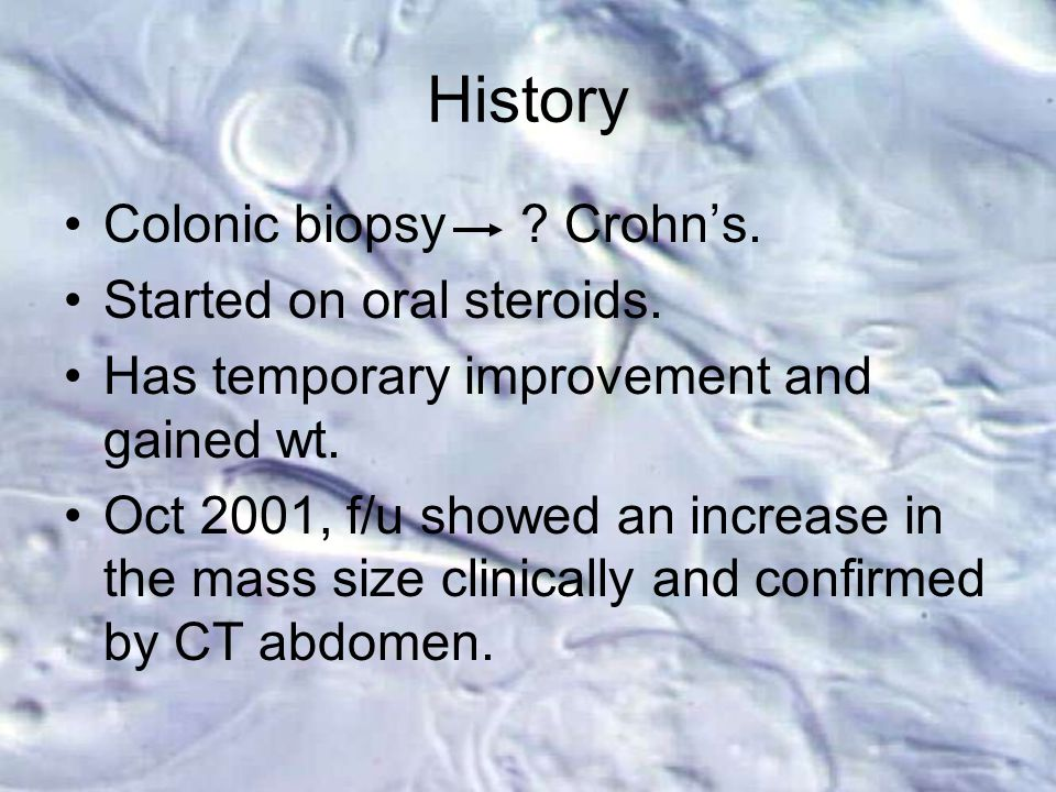History Colonic biopsy . Crohn's. Started on oral steroids.