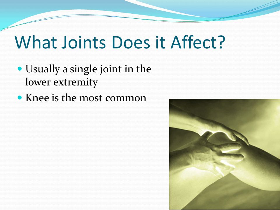 What Joints Does it Affect Usually a single joint in the lower extremity Knee is the most common