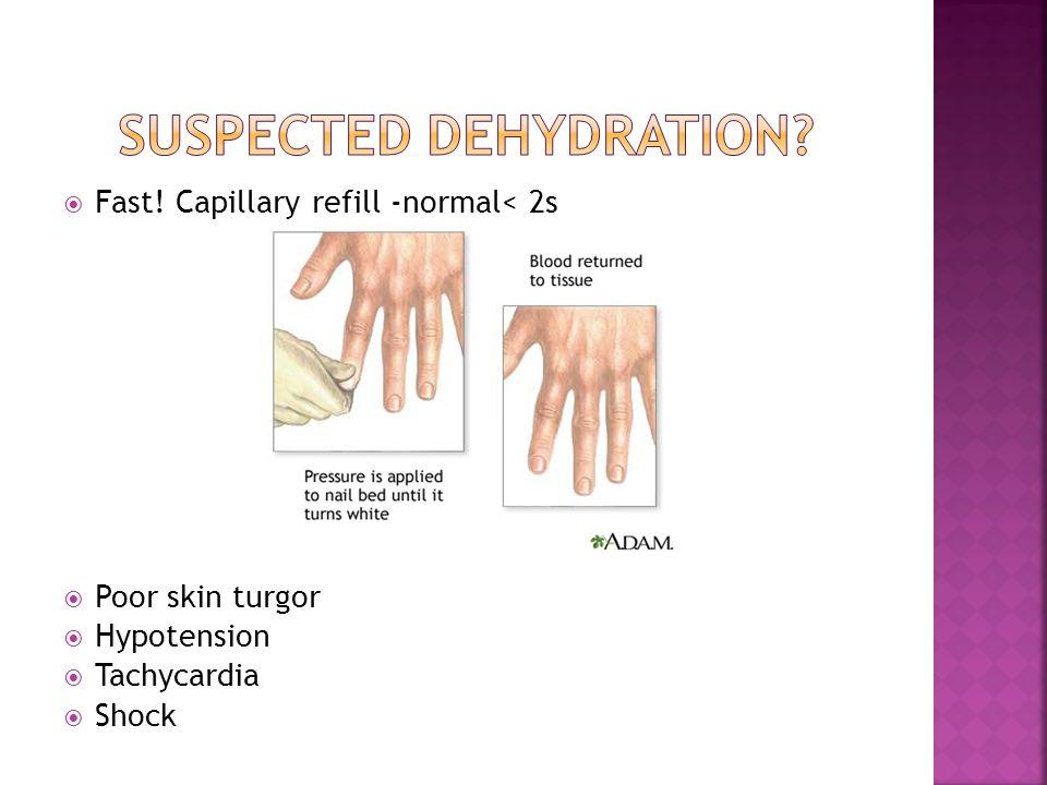  Fast! Capillary refill -normal< 2s  Poor skin turgor  Hypotension  Tachycardia  Shock