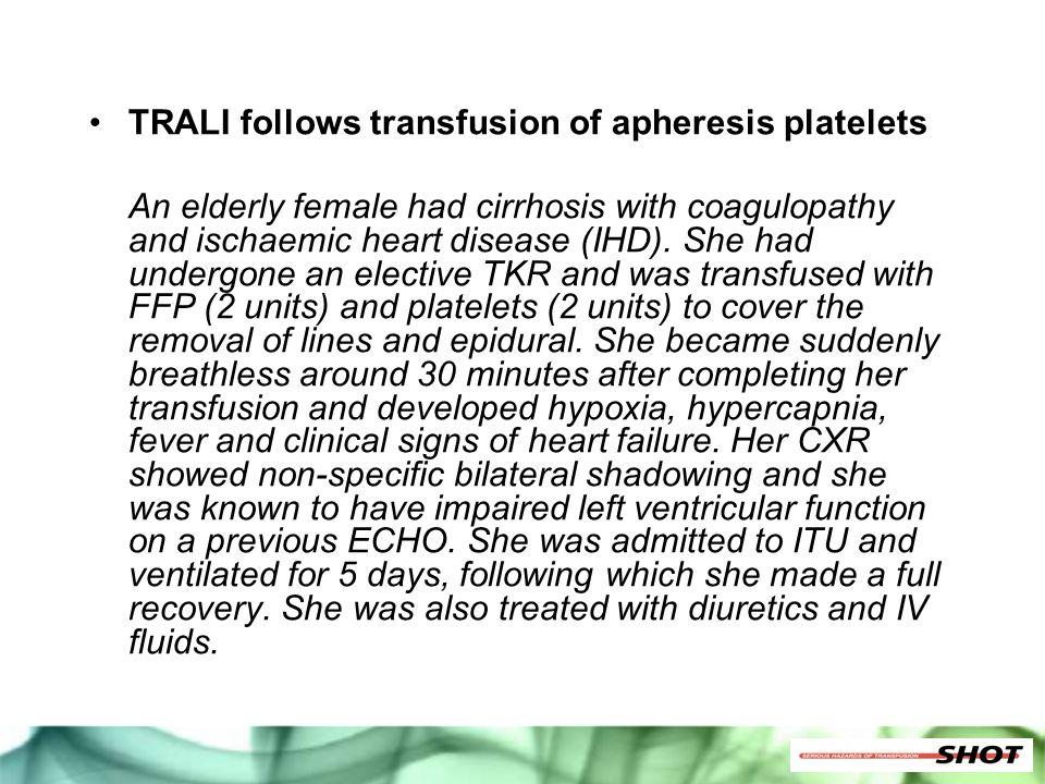 TRALI follows transfusion of apheresis platelets An elderly female had cirrhosis with coagulopathy and ischaemic heart disease (IHD). She had undergon
