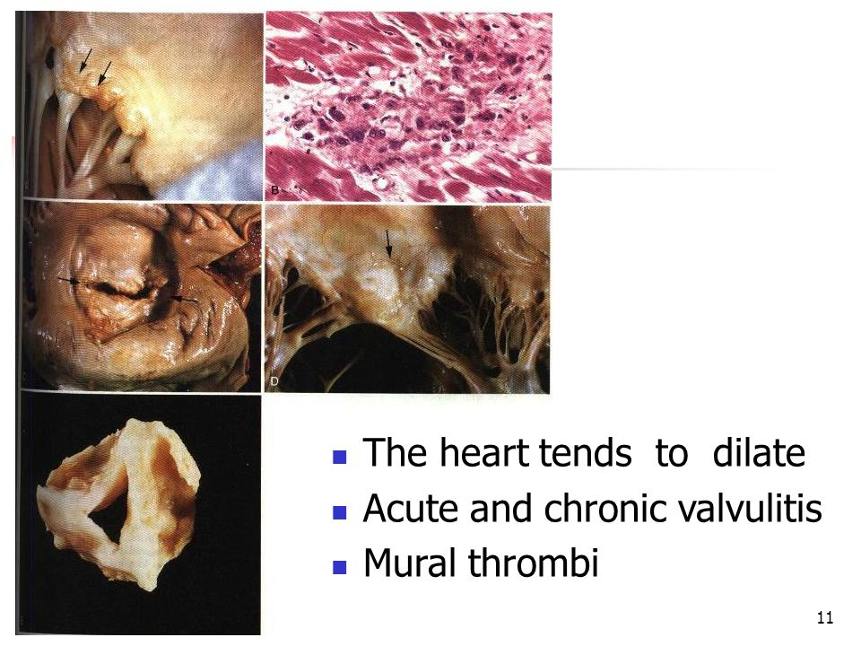11 The heart tends to dilate Acute and chronic valvulitis Mural thrombi