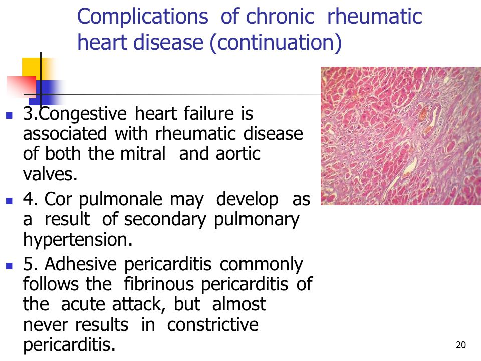 20 Complications of chronic rheumatic heart disease (continuation) 3.Congestive heart failure is associated with rheumatic disease of both the mitral