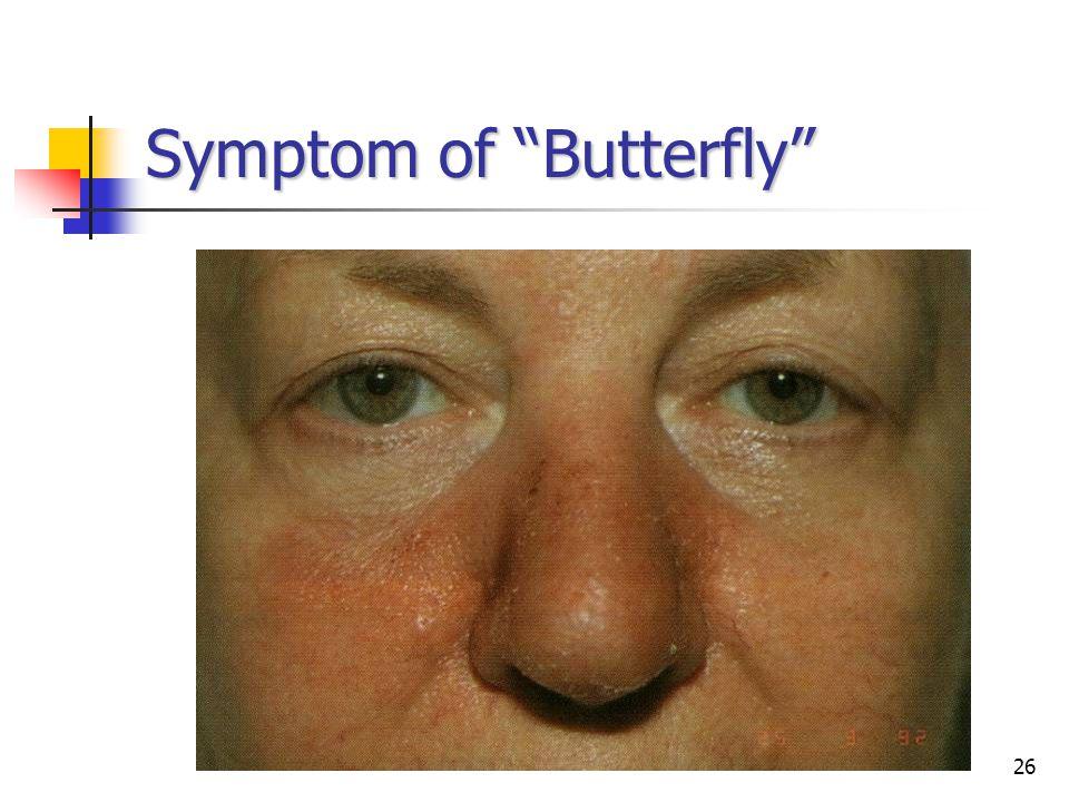 26 Symptom of Butterfly