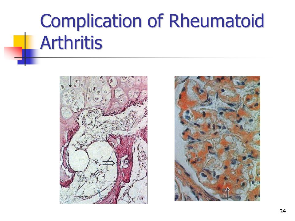 34 Complication of Rheumatoid Arthritis