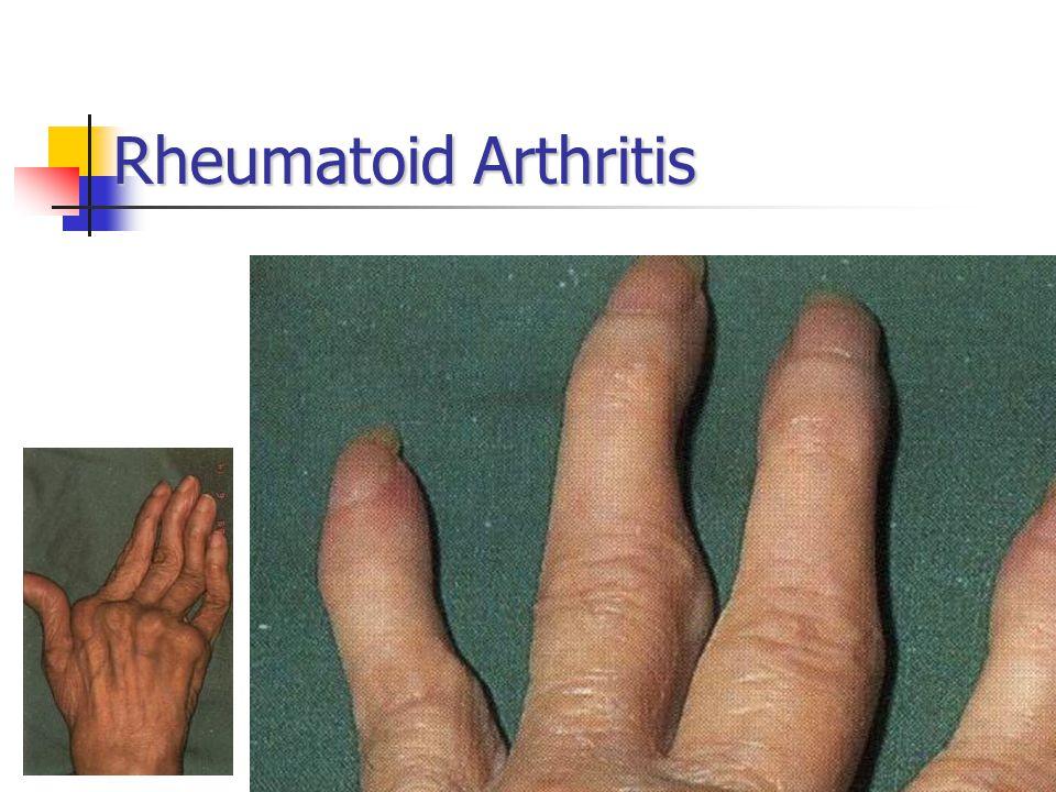 35 Rheumatoid Arthritis
