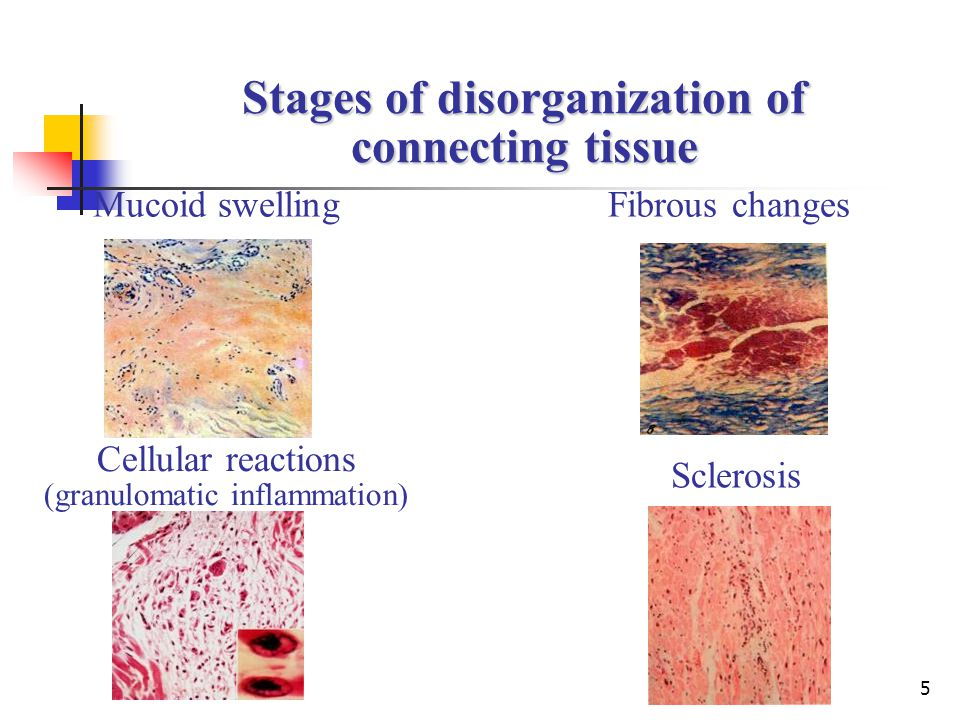 5 Mucoid swelling Stages of disorganization of connecting tissue Fibrous changes Cellular reactions (granulomatic inflammation) Sclerosis