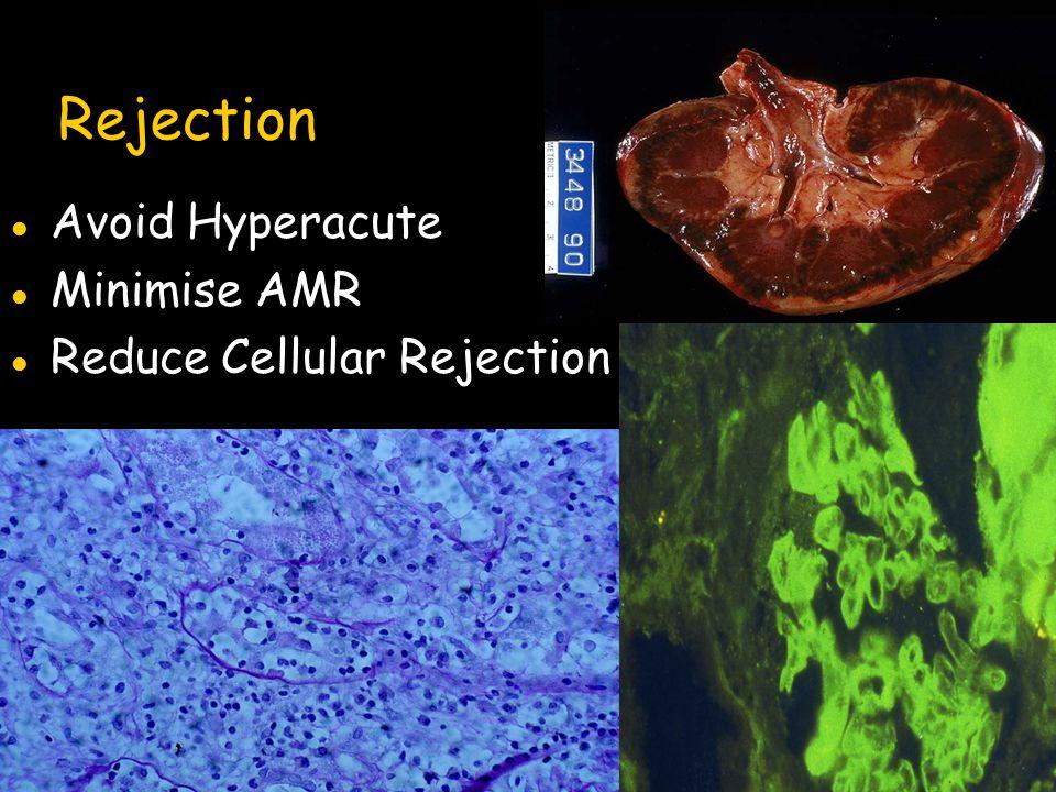 Rejection l Avoid Hyperacute l Minimise AMR l Reduce Cellular Rejection