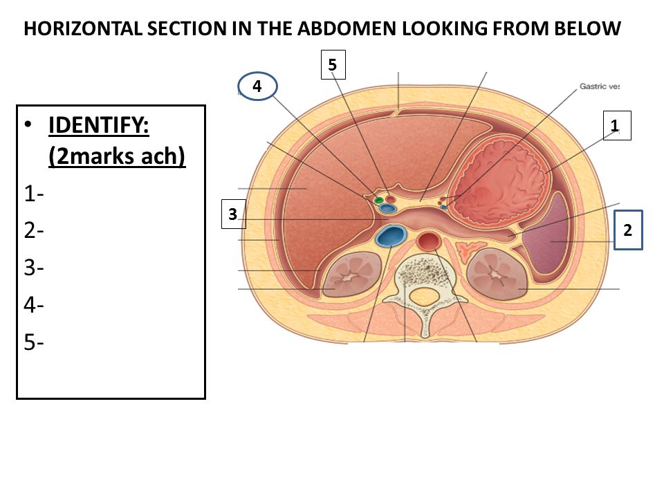 IDENTIFY: (2marks ach) 1- 2- 3- 4- 5- 4 5 HORIZONTAL SECTION IN THE ABDOMEN LOOKING FROM BELOW 3 2 1