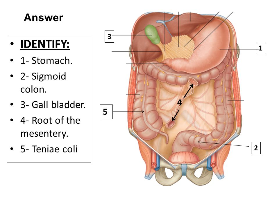 IDENTIFY: 1- Stomach.2- Sigmoid colon. 3- Gall bladder.