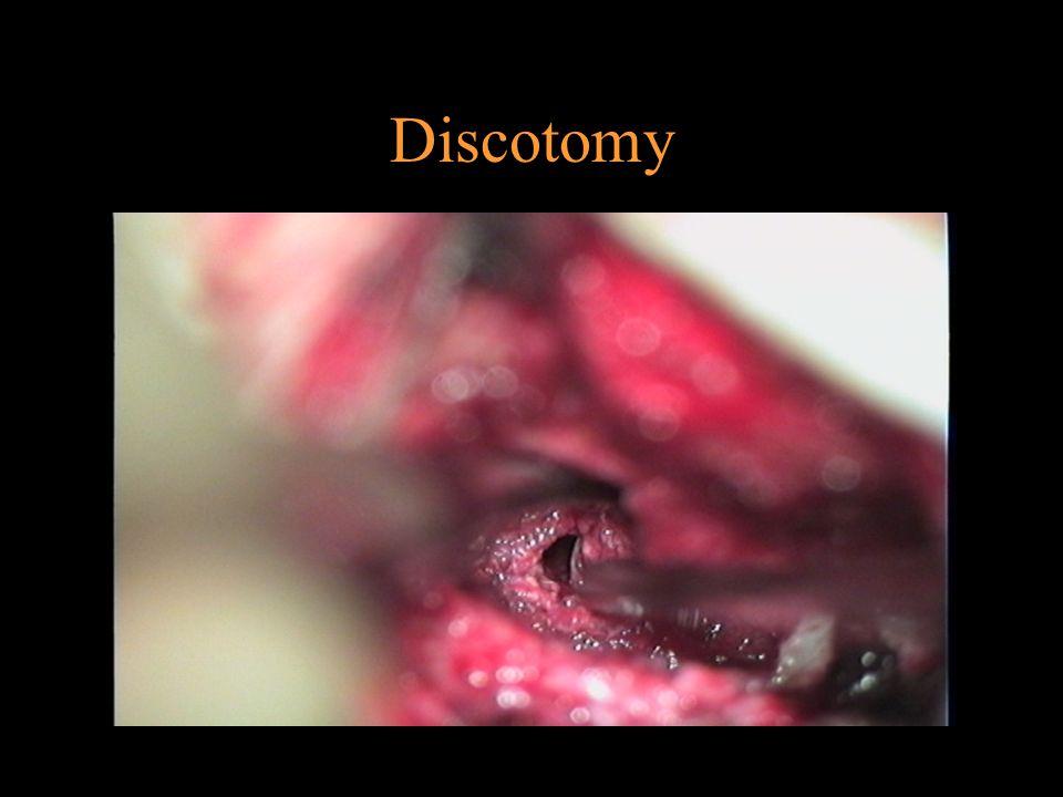 Disc protrusion