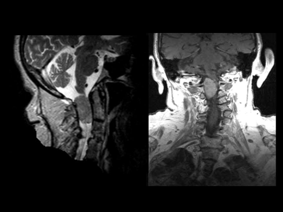 Extramedullary tumour Neurofibroma