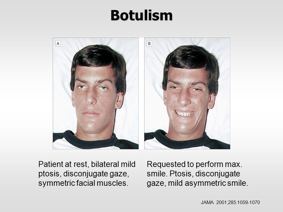 Botulism Requested to perform max.smile. Ptosis, disconjugate gaze, mild asymmetric smile.