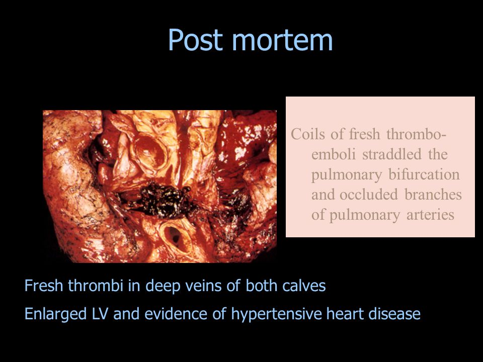 Coils of fresh thrombo- emboli straddled the pulmonary bifurcation and occluded branches of pulmonary arteries Fresh thrombi in deep veins of both calves Enlarged LV and evidence of hypertensive heart disease Post mortem
