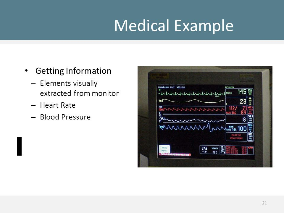 Medical Example Getting Information – Elements visually extracted from monitor – Heart Rate – Blood Pressure 21