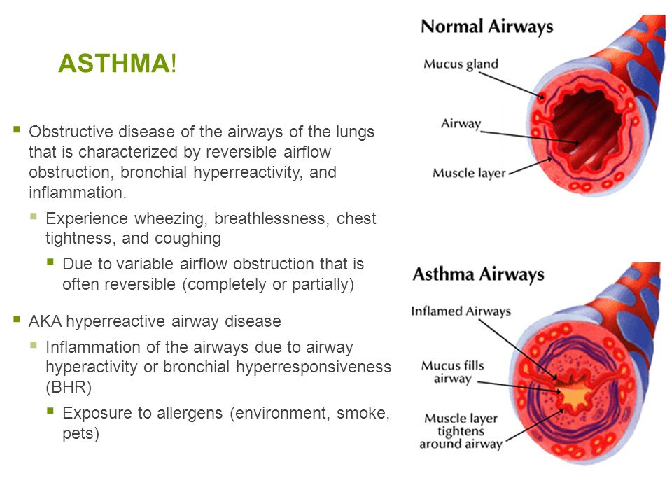 ASTHMA!  Obstructive disease of the airways of the lungs that is characterized by reversible airflow obstruction, bronchial hyperreactivity, and infl