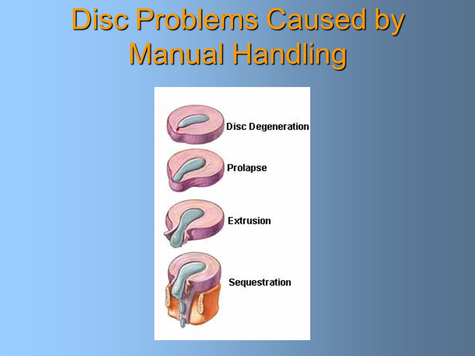 Disc Problems Caused by Manual Handling