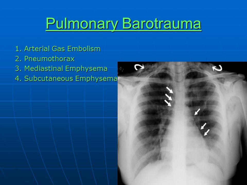 Pulmonary Barotrauma 1. Arterial Gas Embolism 2. Pneumothorax 3. Mediastinal Emphysema 4. Subcutaneous Emphysema