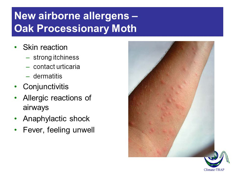 New airborne allergens – Oak Processionary Moth Skin reaction –strong itchiness –contact urticaria –dermatitis Conjunctivitis Allergic reactions of airways Anaphylactic shock Fever, feeling unwell