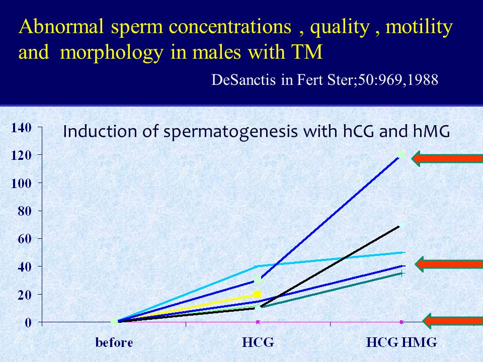 Abnormal sperm concentrations, quality, motility and morphology in males with TM DeSanctis in Fert Ster;50:969,1988 Induction of spermatogenesis with hCG and hMG