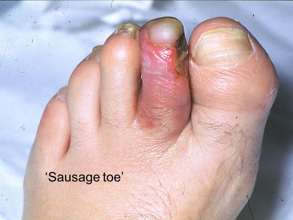 'Sausage toe'
