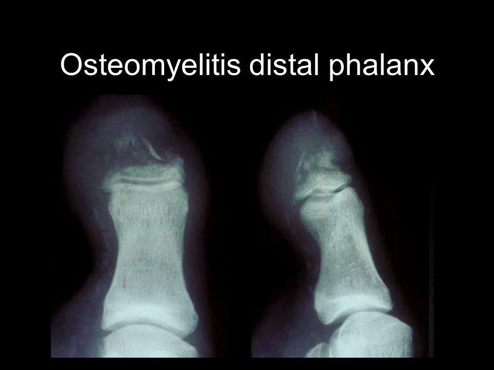 Osteomyelitis distal phalanx