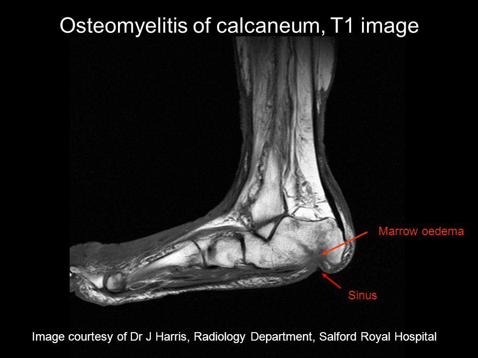 Osteomyelitis of calcaneum, T1 image Image courtesy of Dr J Harris, Radiology Department, Salford Royal Hospital Sinus Marrow oedema