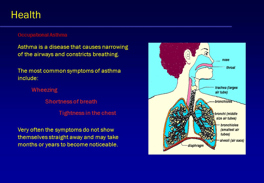 Health Occupational Asthma Asthma is a disease that causes narrowing of the airways and constricts breathing.