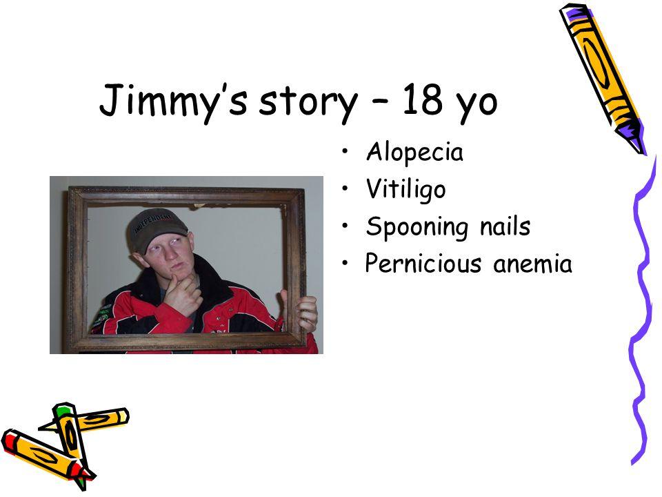 Jimmy's story – 18 yo Alopecia Vitiligo Spooning nails Pernicious anemia