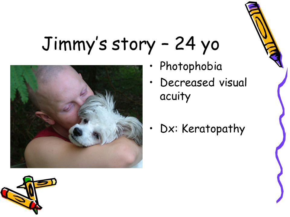 Jimmy's story – 24 yo Photophobia Decreased visual acuity Dx: Keratopathy