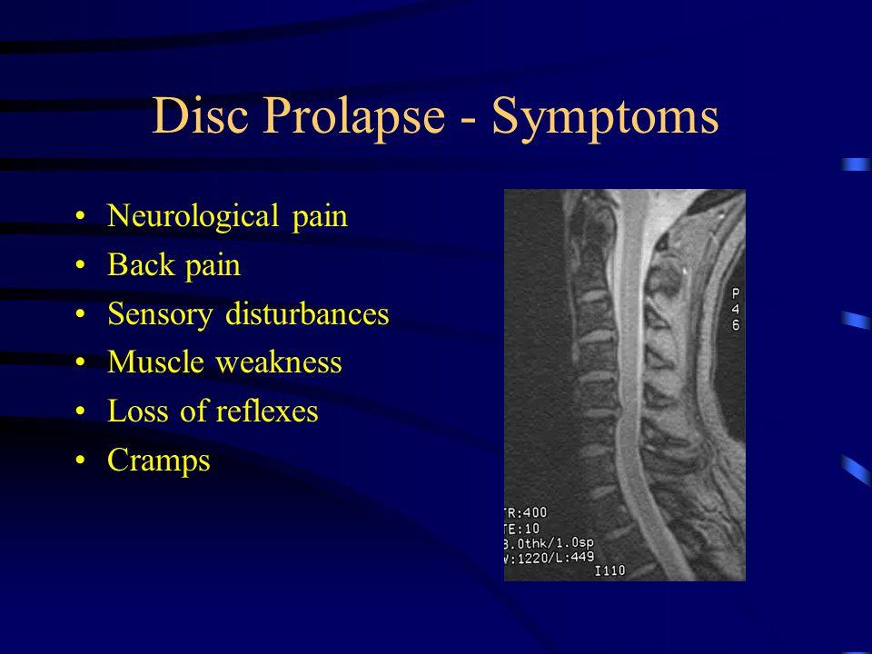 Disc Prolapse - Symptoms Neurological pain Back pain Sensory disturbances Muscle weakness Loss of reflexes Cramps