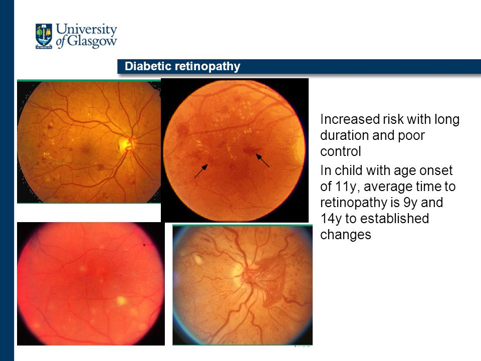 Diabetic retinopathy Increased risk with long duration and poor control In child with age onset of 11y, average time to retinopathy is 9y and 14y to established changes