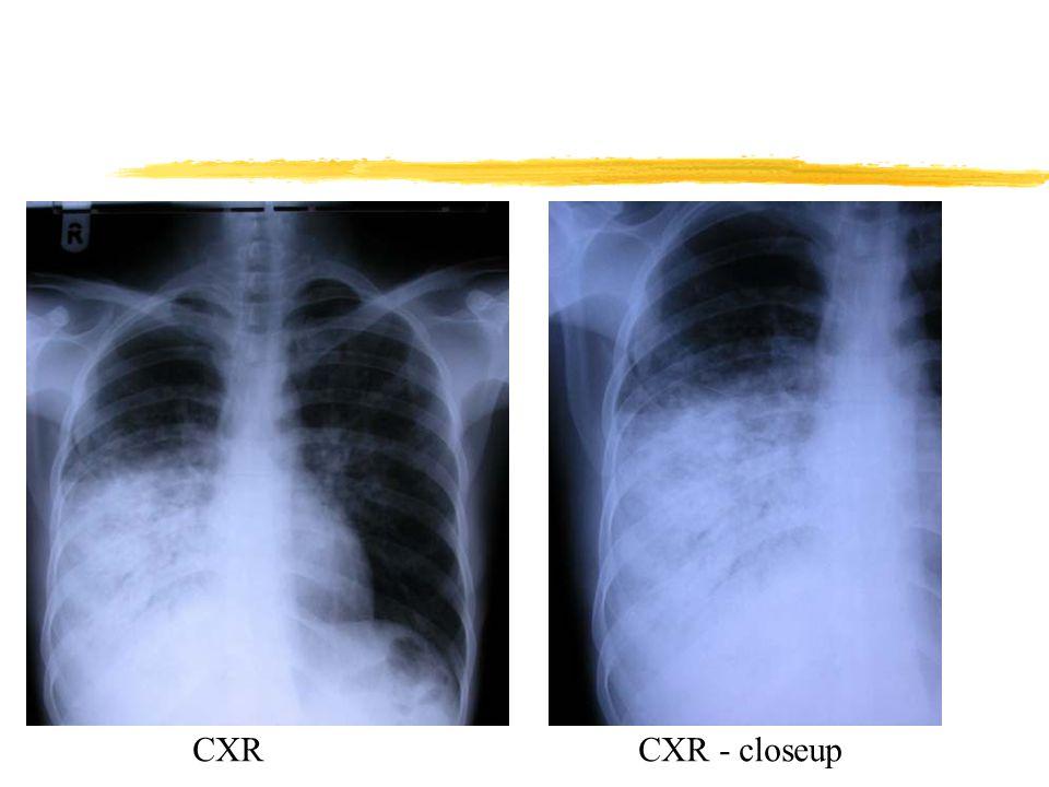 CXRCXR - closeup