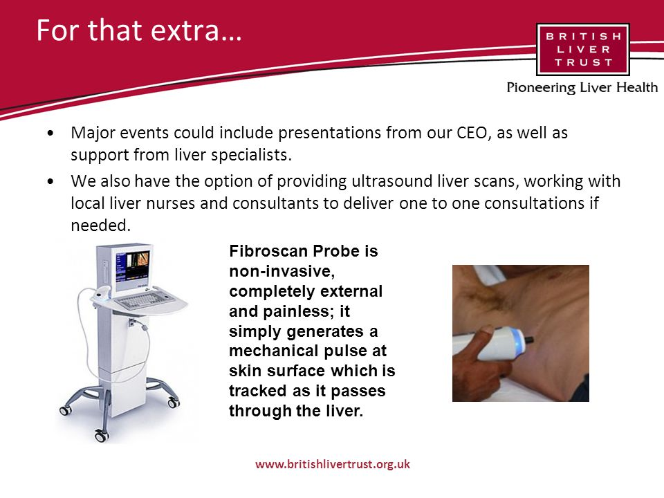 For that extra… Major events could include presentations from our CEO, as well as support from liver specialists.