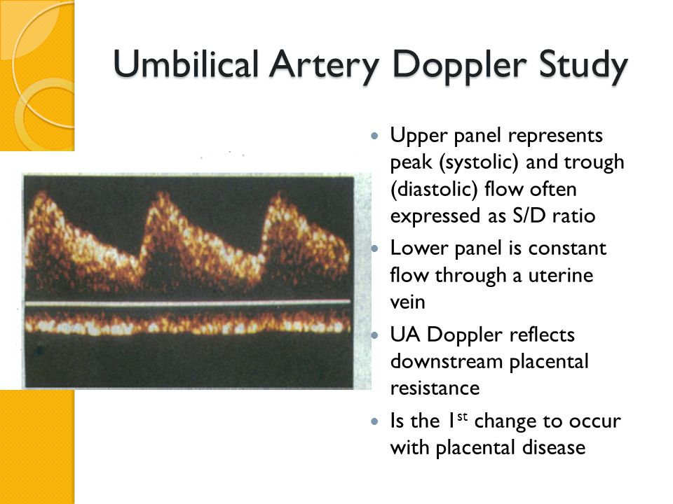 Umbilical Artery Doppler Study Upper panel represents peak (systolic) and trough (diastolic) flow often expressed as S/D ratio Lower panel is constant flow through a uterine vein UA Doppler reflects downstream placental resistance Is the 1 st change to occur with placental disease