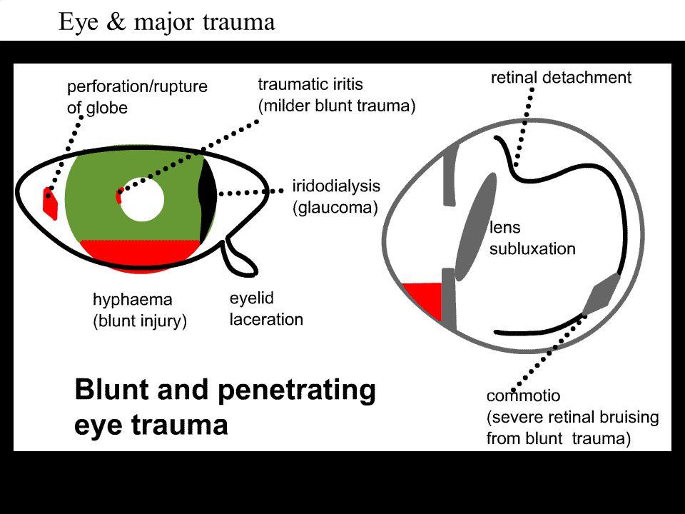 Eye & major trauma