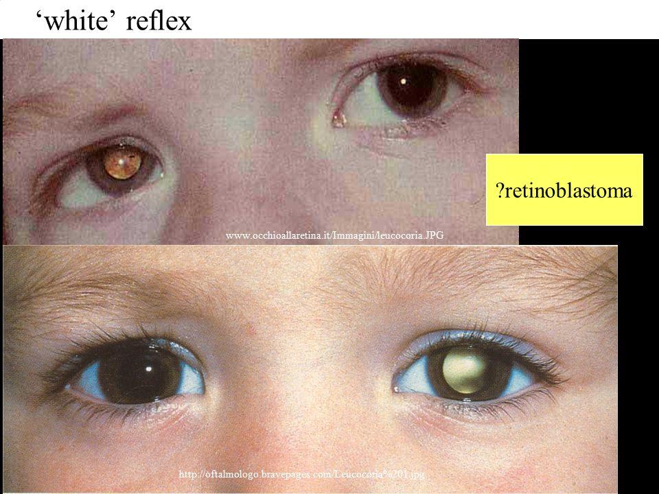 'white' reflex www.occhioallaretina.it/Immagini/leucocoria.JPG http://oftalmologo.bravepages.com/Leucocoria%201.jpg retinoblastoma