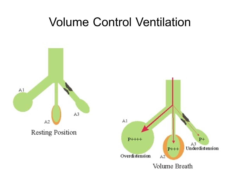Pressure Control Ventilation