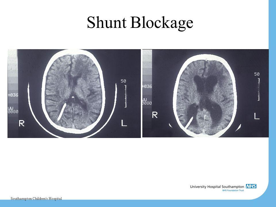 Shunt Blockage Southampton Children's Hospital