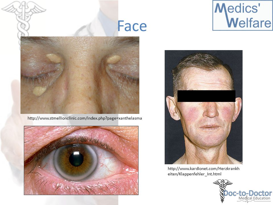 Face http://www.stmellionclinic.com/index.php?page=xanthelasma http://www.kardionet.com/Herzkrankh eiten/Klappenfehler_Int.html